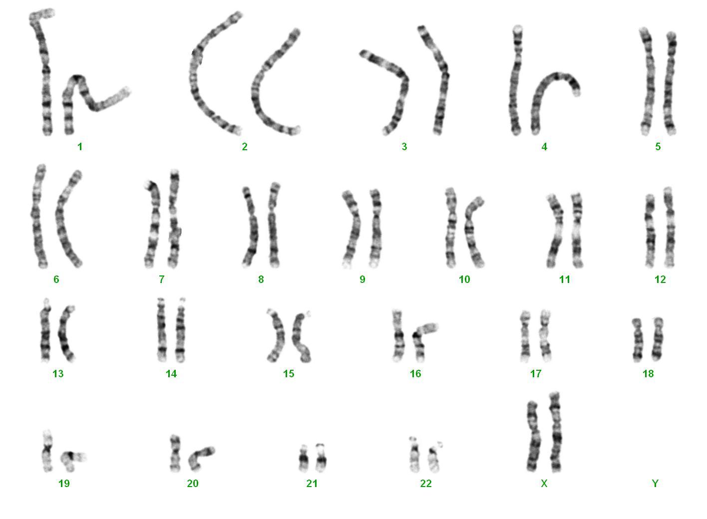 DNA-Diagnostik Hamburg : Gemeinschaftspraxis für Humangenetik und Genetische LaboreChromosomenanalysen – allgemeine Informationen